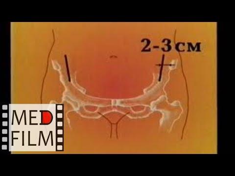 Экстраперитонеальный доступ при перевязке подвздошной артерии ©Ligation of the internal iliac artery