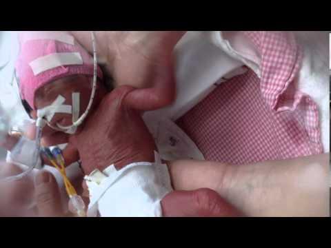 Gwen werd met 23 weken en 6 dagen geboren | Kleine baby's, grote zorg