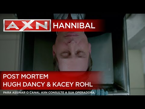 AXN   Hannibal - Post Mortem 2 - Entrevista com Hugh Dancy & Kacey Rohl
