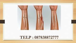 SUBHANALLAH !! Obat Patah Tulang || Cara Mengobati Patah Tulang Tanpa Operasi || Tips Hidup Sehat.