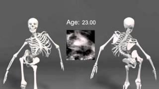 биология 9 класс  скелет , сколиоз