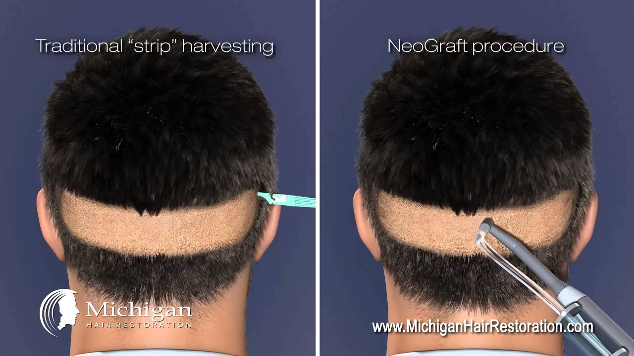 Michigan Hair Restoration - NeoGraft (FUE) Method - YouTube