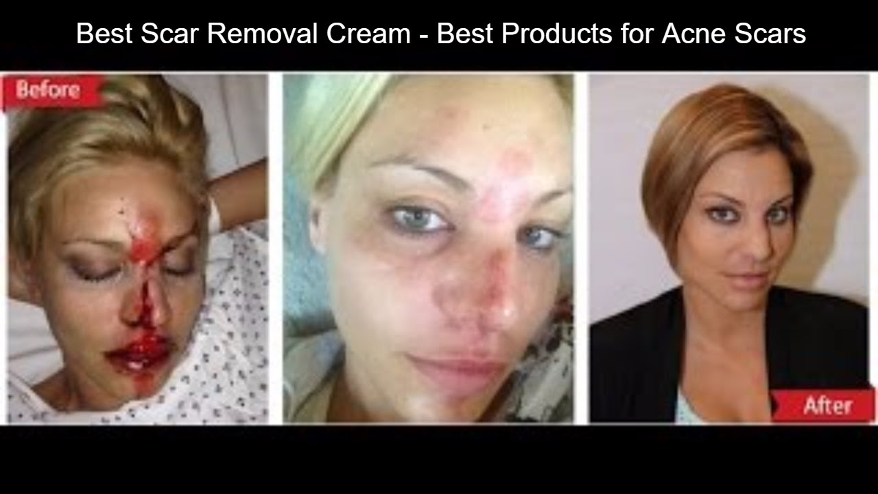 Best Scar Removal Cream Best Products For Acne Scars Youtube