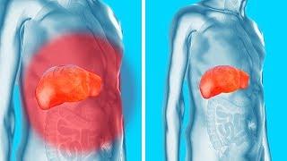 Remova as Toxinas dos seus Rins, Fígado e Bexiga de Maneira Suave mas Efetiva