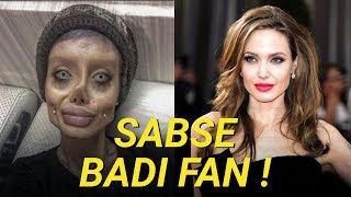 50 Surgery Ke Baad Bhi Nahi Ban Payi