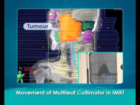 What is the difference between IMRT & conventional radiotherapy?