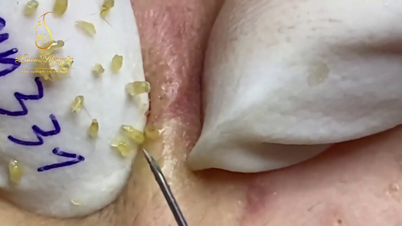 Get rid of many blackheads on the face (331a) | Loan Nguyen