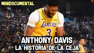 Anthony Davis - La Historia de La Ceja | Mini Documental NBA
