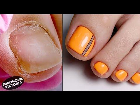 Частичный педикюр. Обработка пальцев. Оранжевые ногти.
