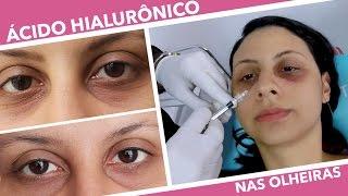A olho do laser escuro custo tratamento