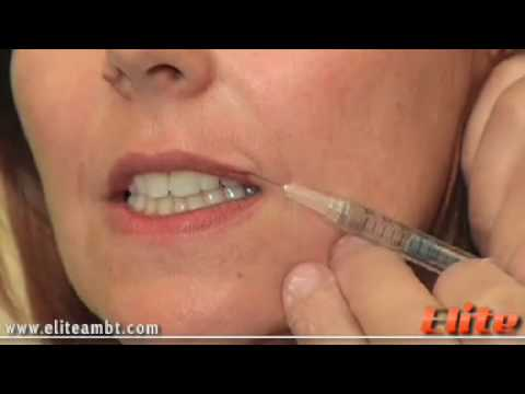 Dermal Fillers Demo Lip Enhancement | Dermal Filler Training | Elite AMBT