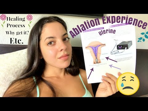 uterine-ablation-experience-!!