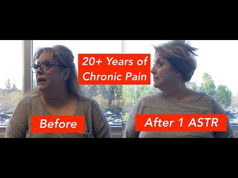 Doris' Chronic Headache & Neck Pain Was Relieved After 1 ASTR Session!
