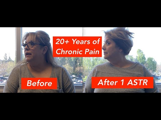 20 Years of Headache & Neck Pain Was Relieved! (REAL RESULTS!!)