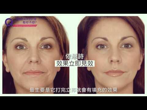 Ellanse The Latest Collagen Stimulating Long Lasting Filler - Doctor