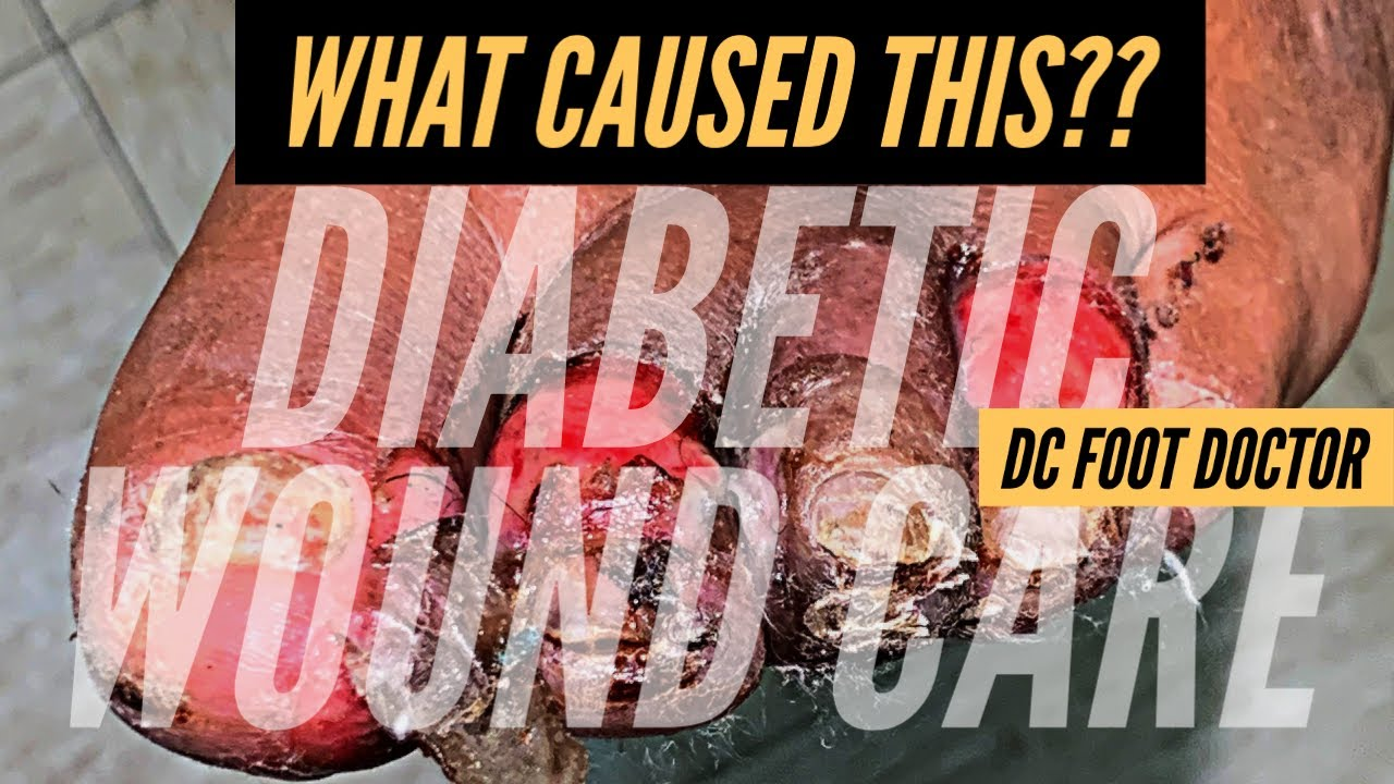 What Caused This? Diabetic Wound Care