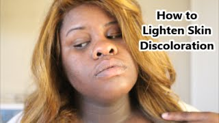 How to Lighten Skin Discoloration + What causes it Thumbnail