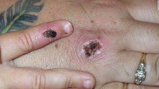 Monkeypox: Nigeria To Investigate Rare Cases Of Virus In UK