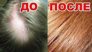 СУПЕР МАСКА для роста и укрепления волос. Эта маска решит многие проблемы с волосами