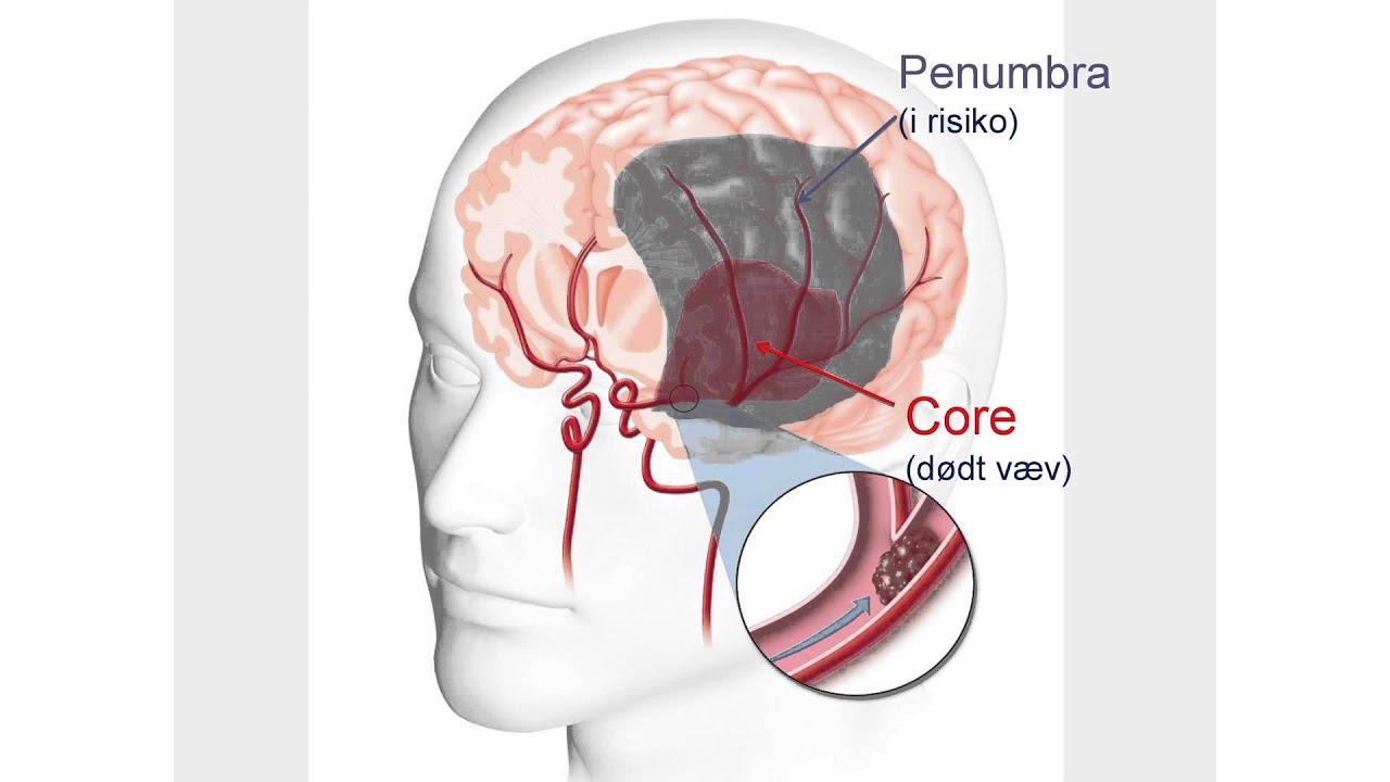 blodprop i hjernen behandling