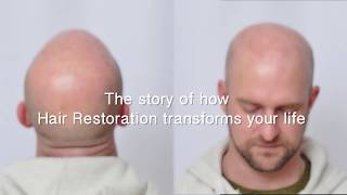Hair Transplant Review - Forhair's Patient - June 2018
