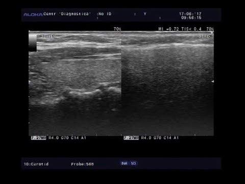 Видеозапись УЗИ - Сравнение эхогенности с околоушной железой - повышенная