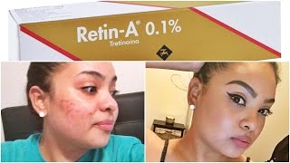 HOW TO GET CLEAR SKIN! Get Rid of ACNE + DARK SPOTS Using RETIN-A Cream