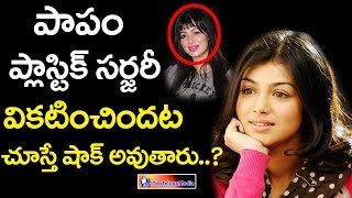 Ayesha Takia Plastic Surgery Before And After || Top Telugu Media