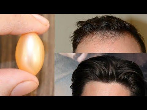 VITAMIN E hair growth serum   vitamin e capsule for fast hair growth
