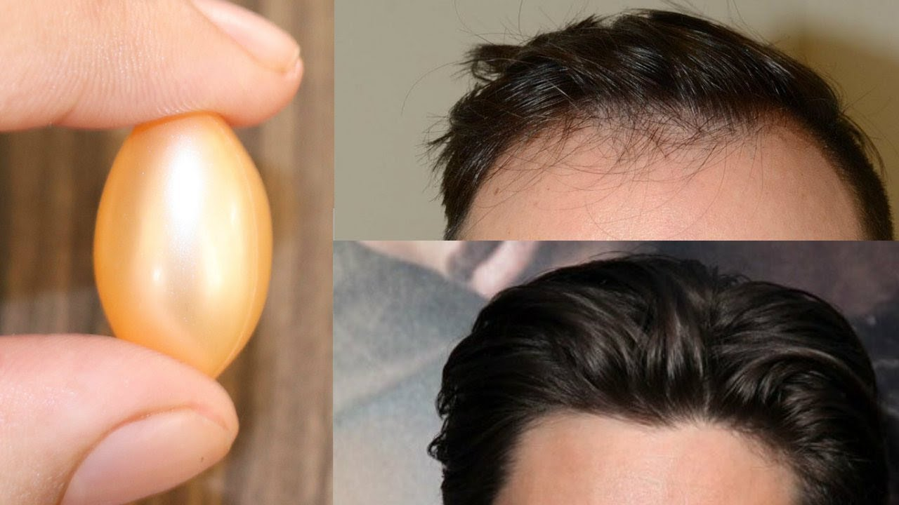 Image result for vitamin e for hair regrowth