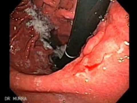 cancer ventriculi
