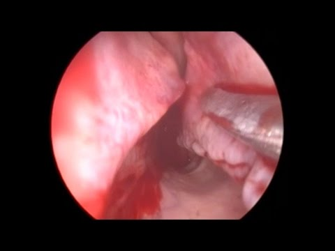 In-office limited septoplasty and turbinate reduction