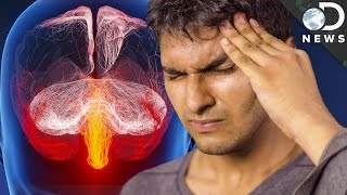 Why Do We Get Migraines?