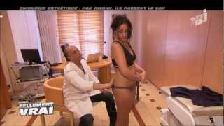 Liposuccion (ou lipoaspiration) des hanches et des fesses - Vidéo Dr Montoneri