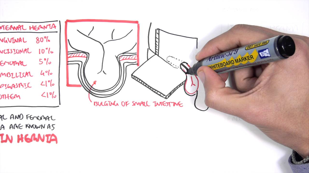 introduction to direct and indirect inguinal hernia [ 1280 x 720 Pixel ]