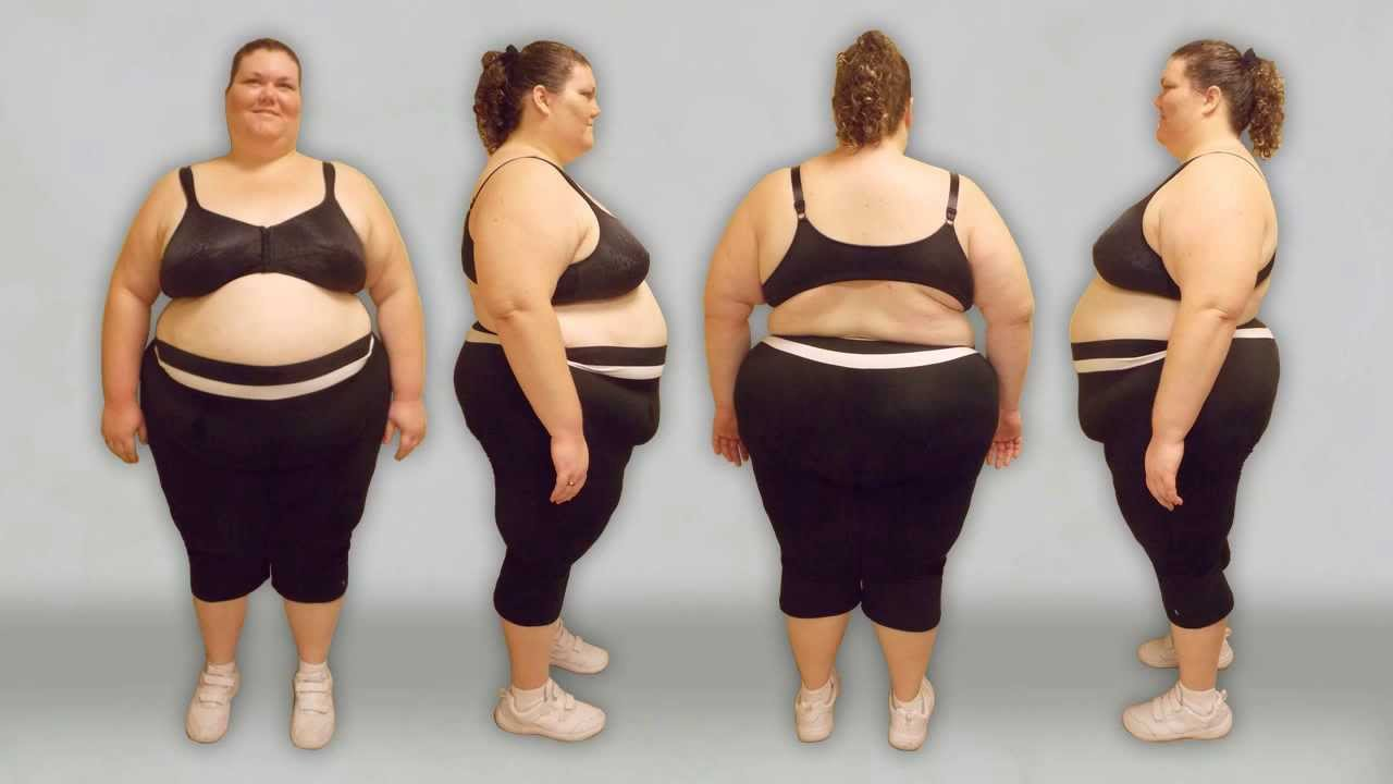 Woman Tips Scales At Over 500 Pounds Youtube