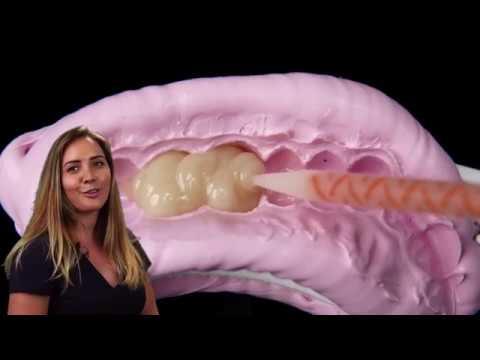 Visalys Temp noodkroon procedure door Kelly