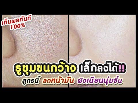 รูขุมขนกว้าง กระชับเล็กลงได้จริง!! เห็นผลทันที 100% ลดหน้ามัน | How to shrink large pores