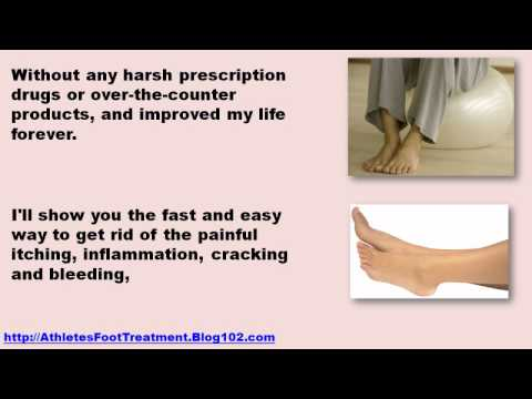 home remedies for athletes foot – athletes foot fungus