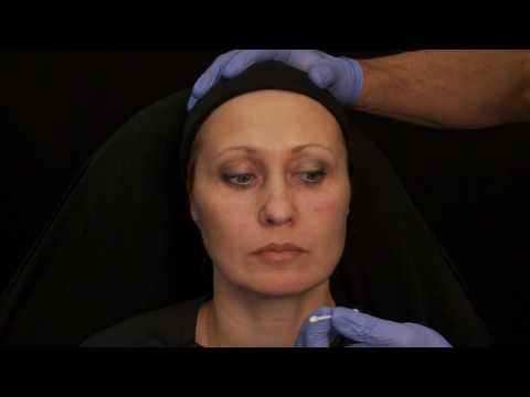Rajeunissement du visage injection botox acide hyaluronique (nez, lèvres, oeil) Dr Raspaldo