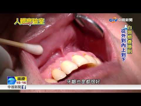【牙肉邊白色】「牙齦顏色」暗示你有沒有牙... +1 | 健康跟著走