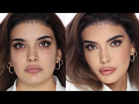 HOW TO COVER UP ACNE | Hindash thumbnail