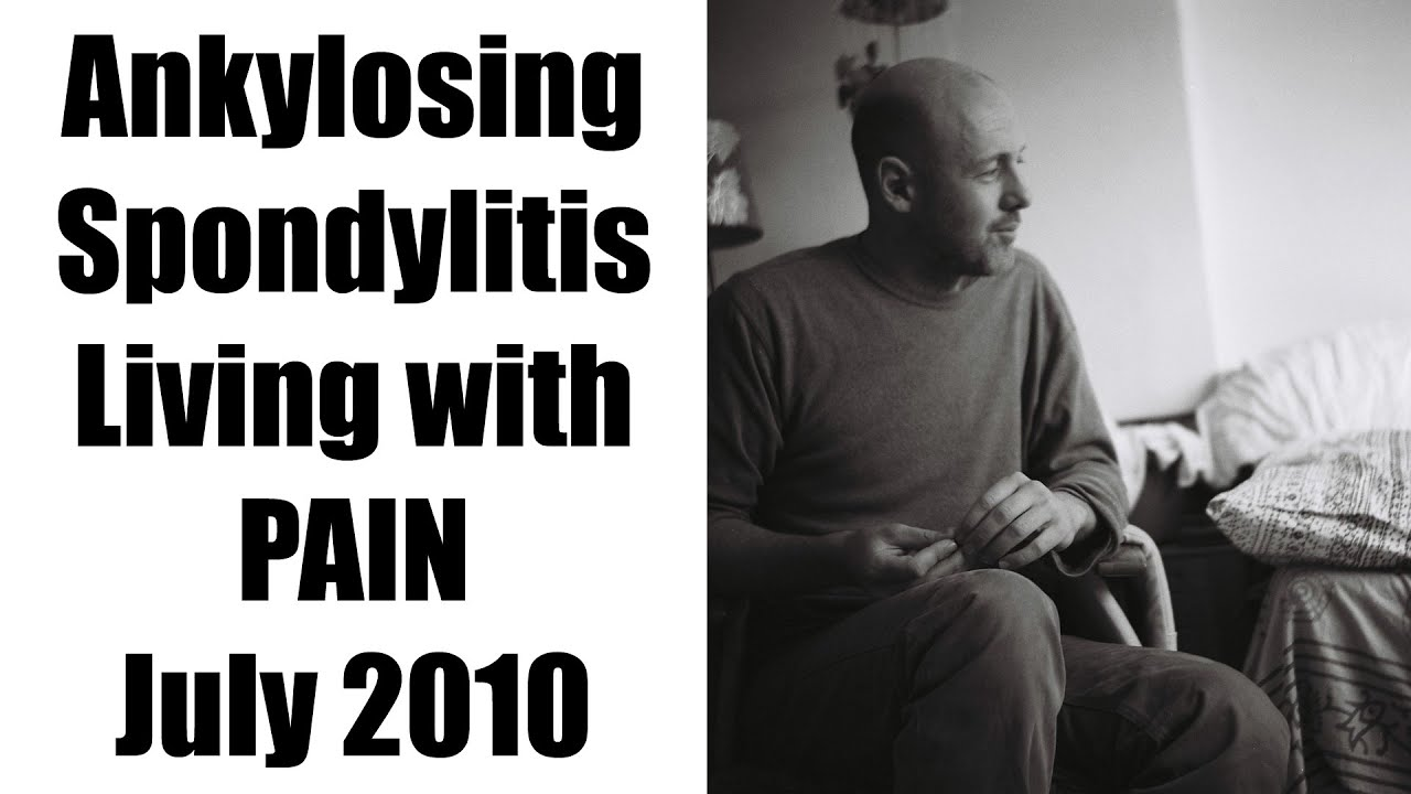 living through the pain of ankylosing Ankylosing spondylitis and other autoimmune diseases can be healed through alternative practices ankylosing spondylitis (as), an autoinflammatory condition of the spine that greatly restricts movement resulting in spinal fusion, crept up on me in high school when i was 19, a rheumatologist confirmed the diagnosis.