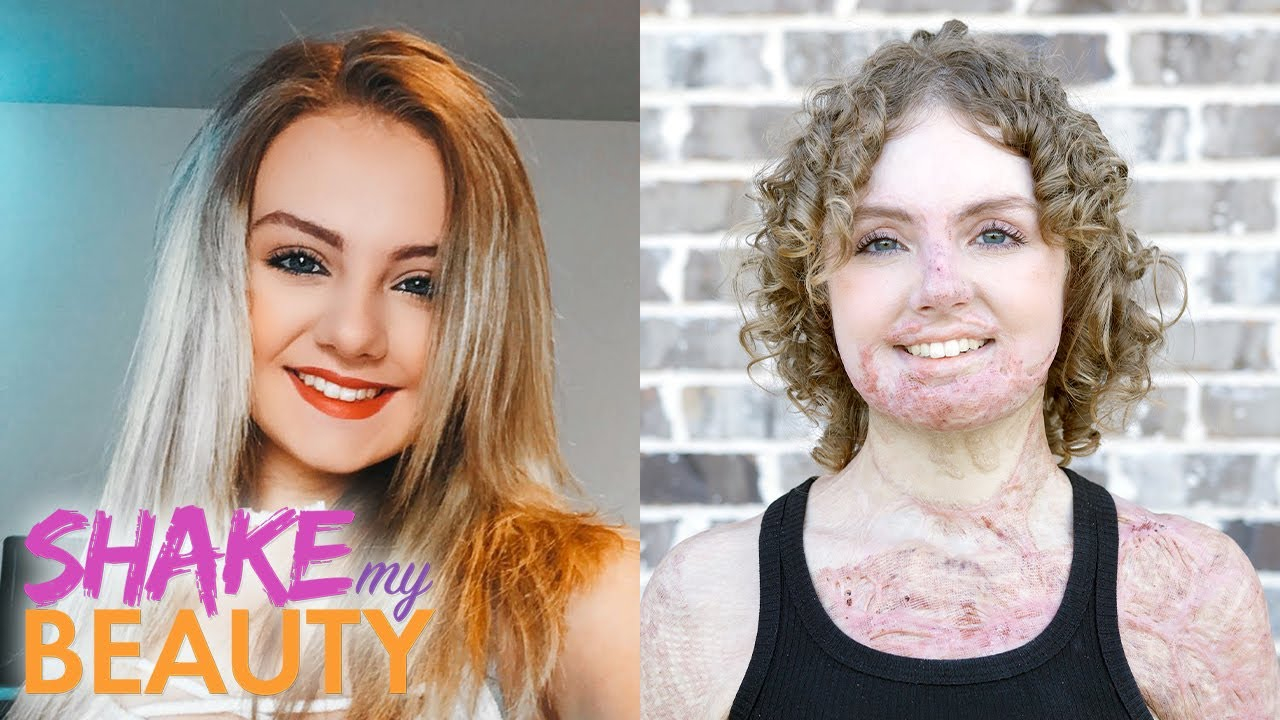 I Was In A Fire Age 16 - But I'm Not Hiding Anymore | SHAKE MY BEAUTY