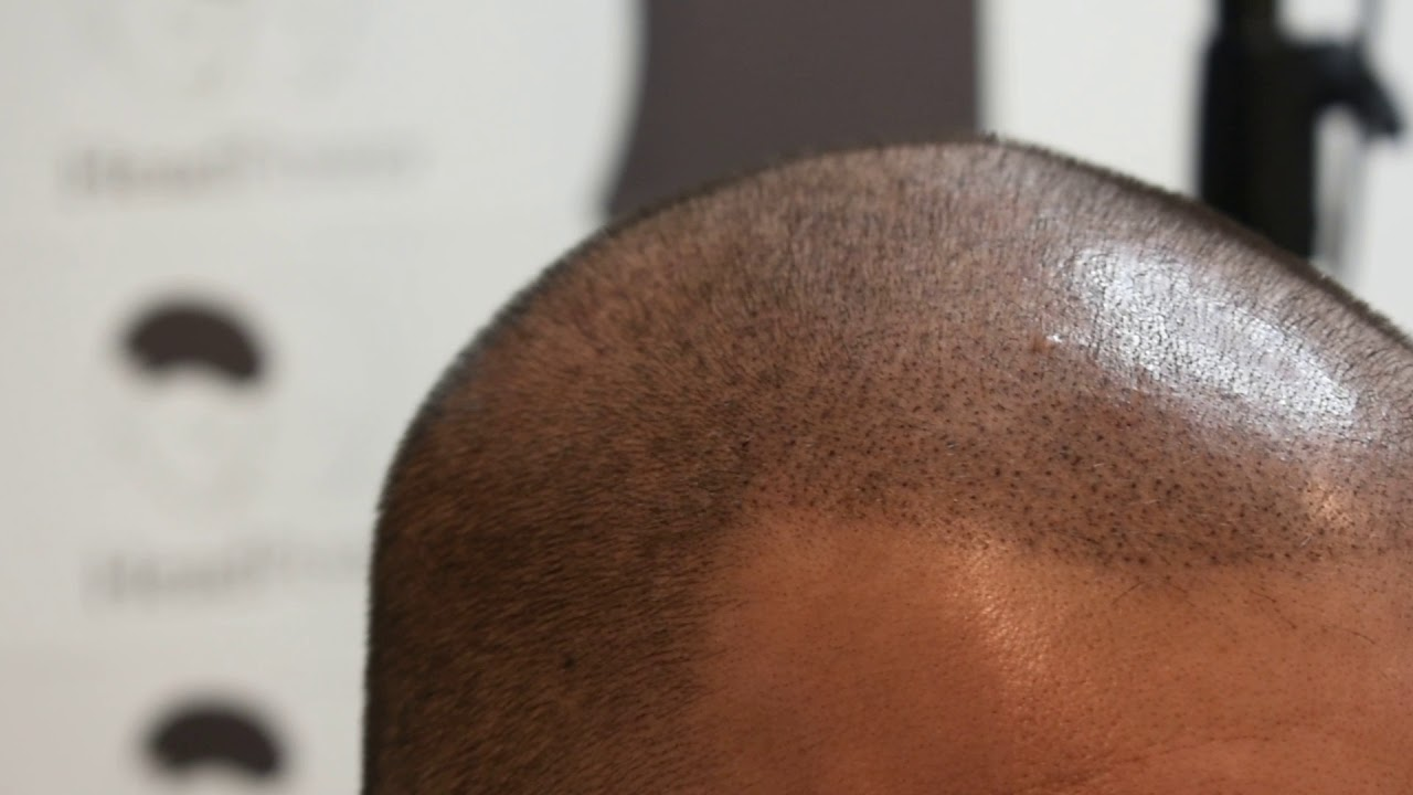 Scalp Micropigmentation After Two Sessions
