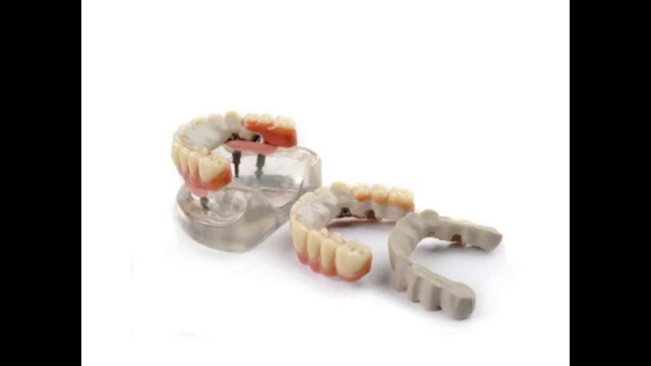 Dentures and all on four dental implant dentures made from JUVORA PEEK  Dental Disc using CADCAM