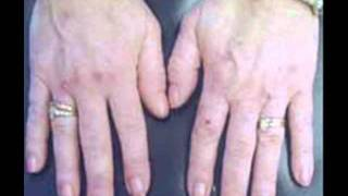 Porphyria Cutanea Tarda Online Review