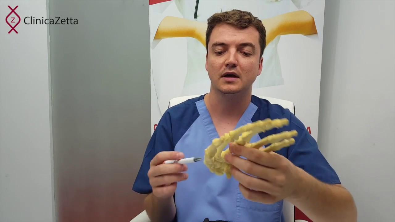 inflamație purulentă a articulațiilor mâinilor)