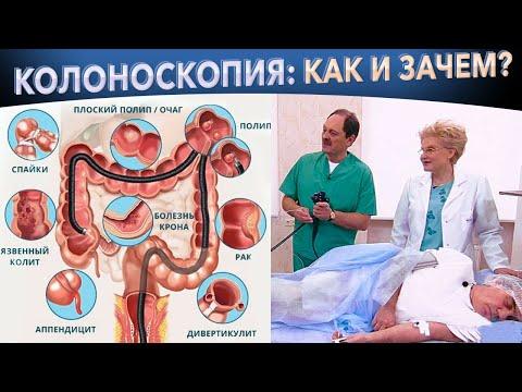 Колоноскопия кишечника – как проходит процедура, зачем нужна?