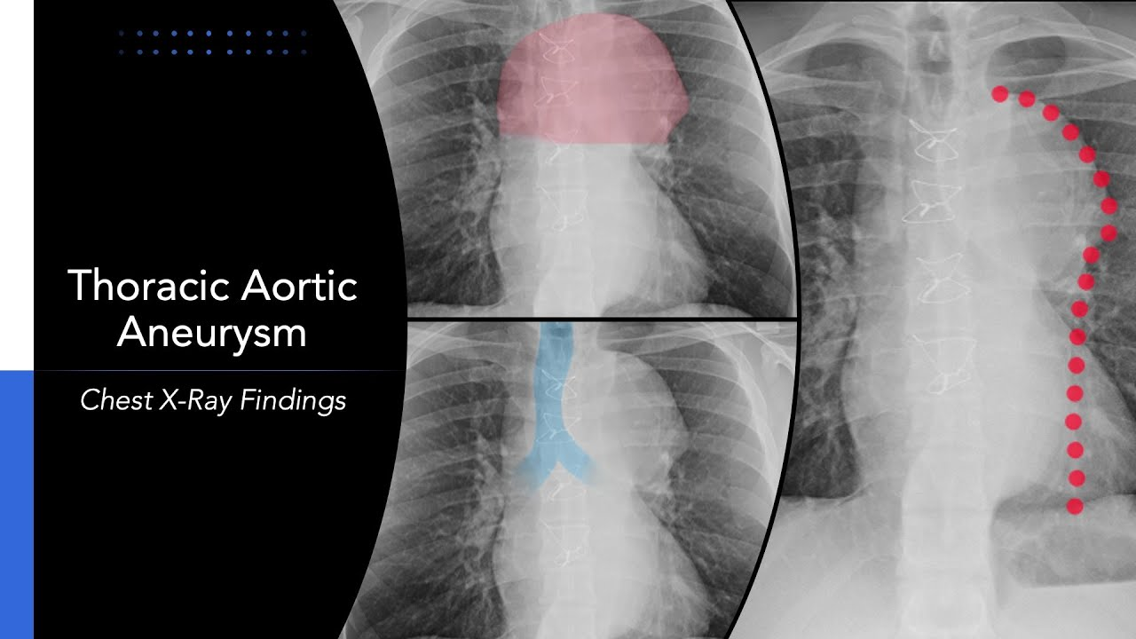 Thoracic Aortic Aneurysm Chest X Ray Findings